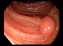 Имитиращи заболявания при раздразнено дебело черво